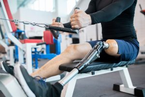 What Injury Victims Should Know Before Getting a Prosthetic Leg